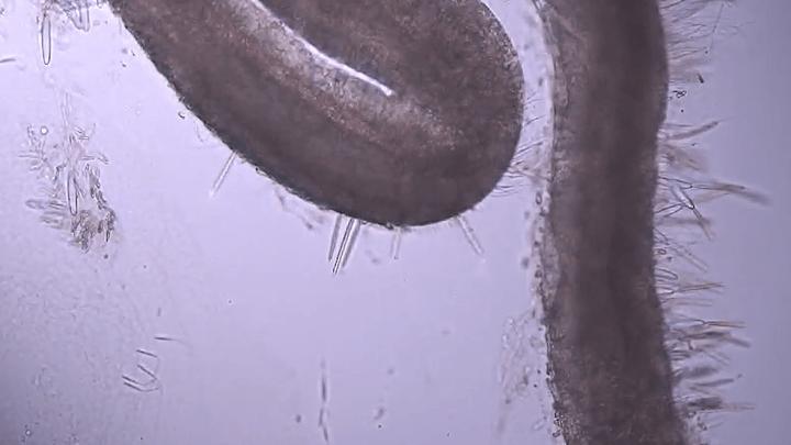 Why Do Jellyfish Stings Hurt