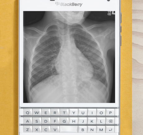 %name BlackBerry reveals the Passport's killer feature: The ability to look at x rays of your lung by Authcom, Nova Scotia\s Internet and Computing Solutions Provider in Kentville, Annapolis Valley