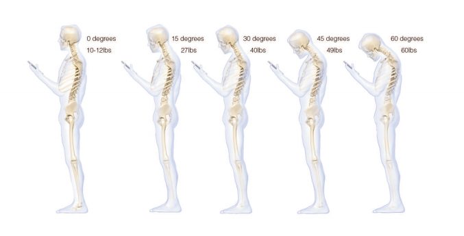 iPhone Android Smartphone Occipital Neuralgia