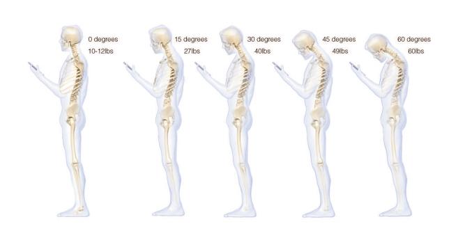 iPhone Android Smartphone Occipital Neuralgia