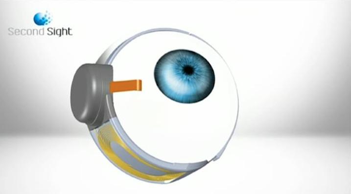 Bionic Eye Surgery Restores Vision