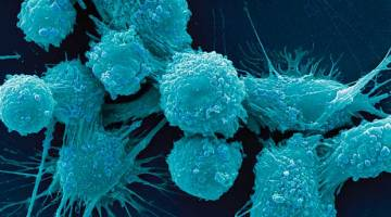 Universal Cancer Vaccine Trial
