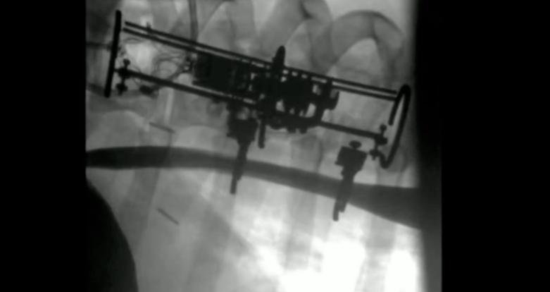 robotic implant