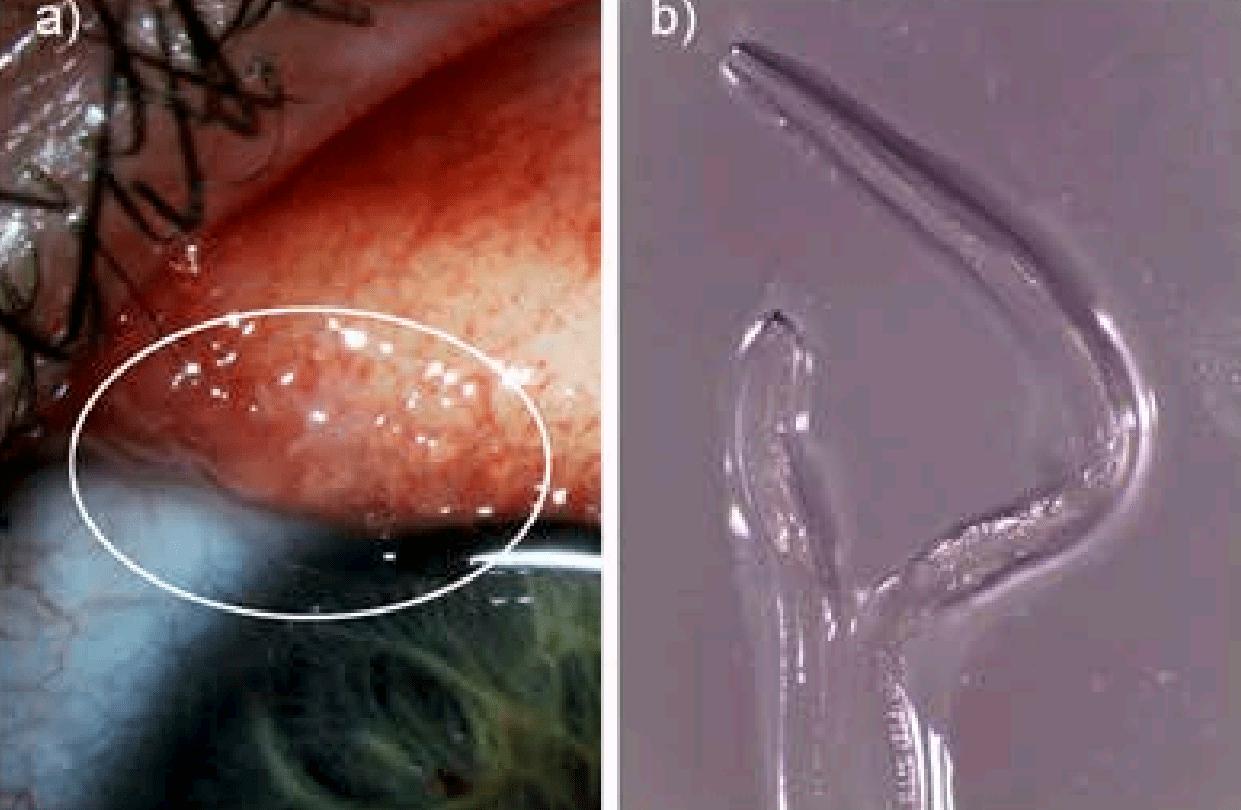 eye worm parasite