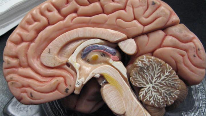 brain tumor ai