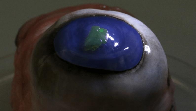eye lasers