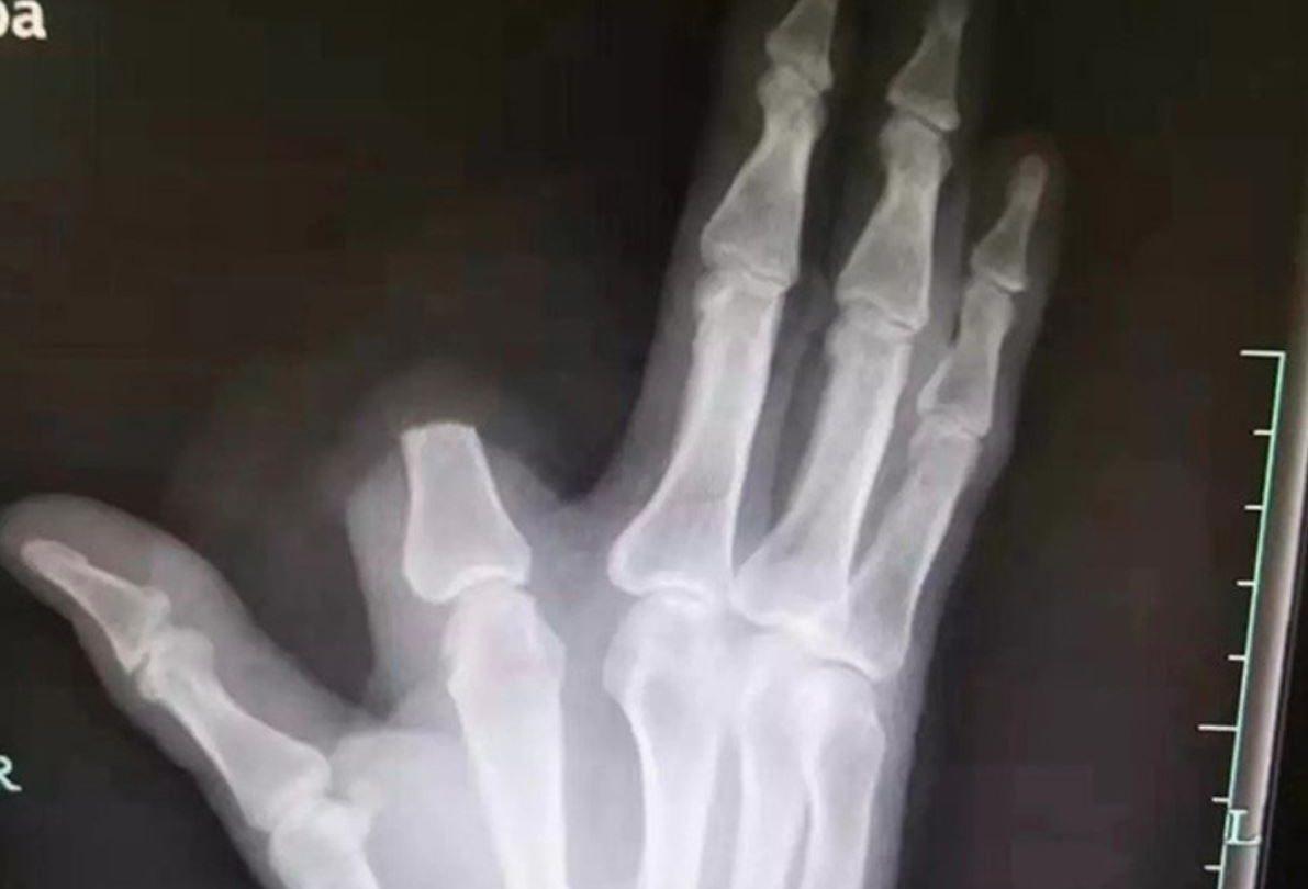 man cuts off finger
