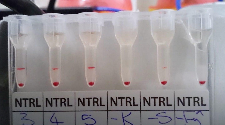 Coronavirus Antibody Test