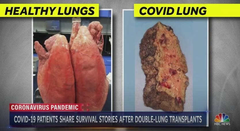 Coronavirus Lung Transplant