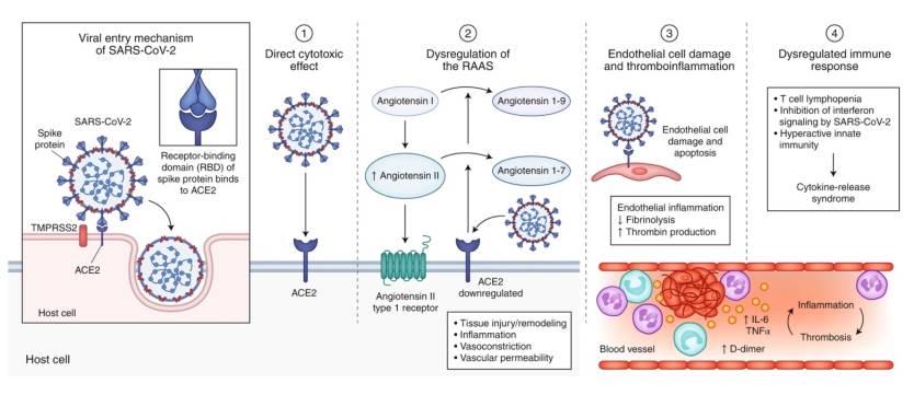 Coronavirus Extrapulmonary Manifestations