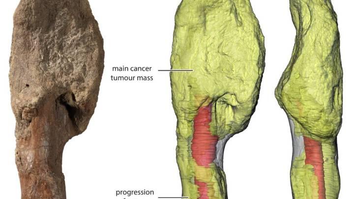 dinosaur cancer