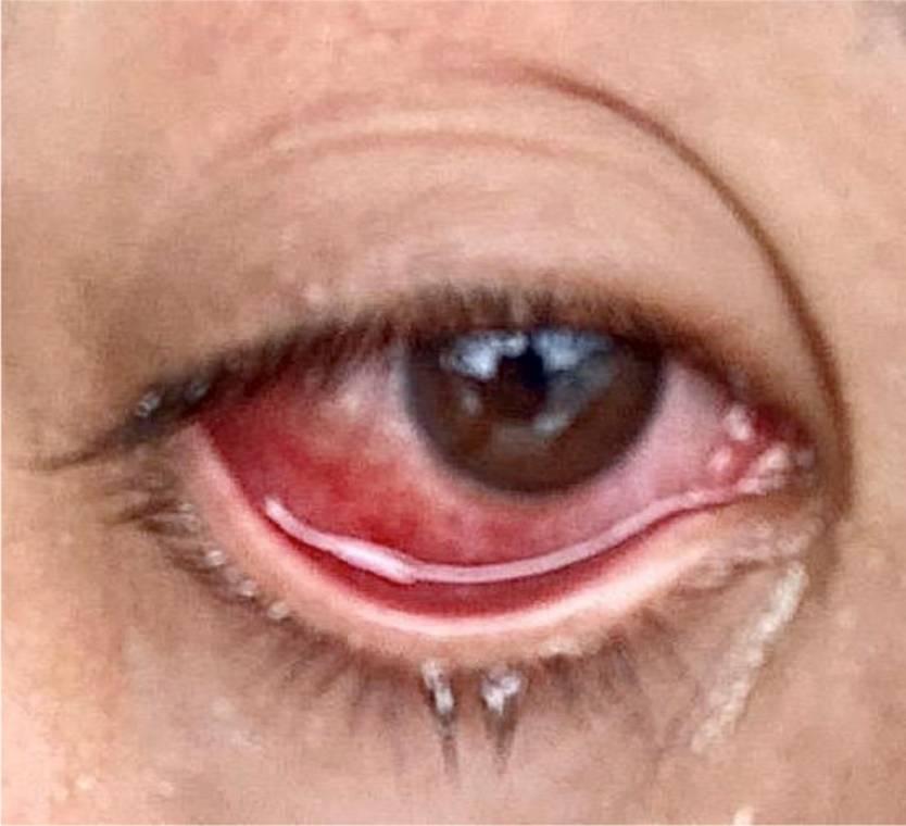 Coronavirus Red Eye