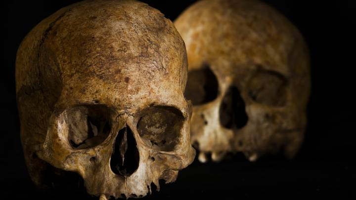 stone age brain surgery