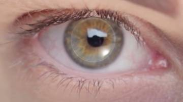 Artificial Corneal Implant