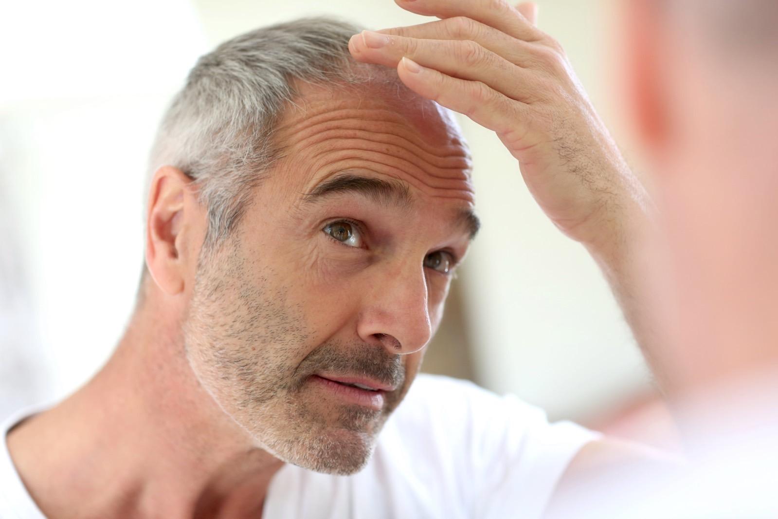 Para peneliti baru saja membuktikan stres membuat rambut beruban