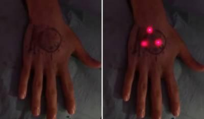 human implants