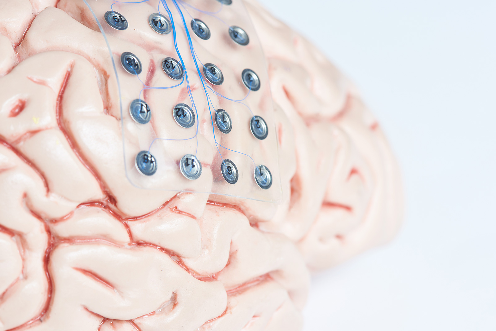 A human brain with electrodes